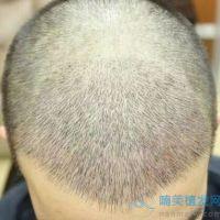 扬州新生头顶加密种植,成活率高