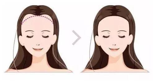 西宁碧莲盛植发价格表已更新,都是现在真实的植发手术报价