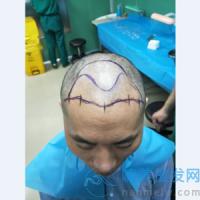 广州碧莲盛植发,解决头发困扰不是梦