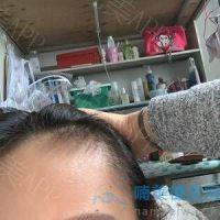 西安碧莲盛发际线种植,头不秃了真好