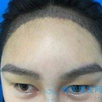 兰州新禾发际线眉毛种植,这个技术真的很不错