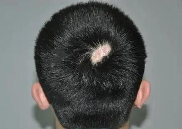 科普:斑秃分为哪几种类型以及展示不同类型斑秃的图片