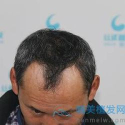 成都丝缘秃顶植发,植发这个技术真是好