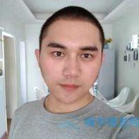 杭州新生发际线种植,有头发的感觉真的棒