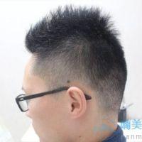 成都新生发际线种植,头发长势还不错