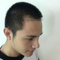重庆碧莲盛植发,重回颜值巅峰