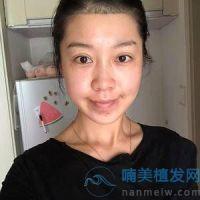 南京新生植发,前后变化是不是很大呀