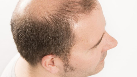 导致鬓角脱发的因素有哪些呢?