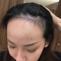 无锡坤如玛丽发际线种植,和原生发融合的非常好