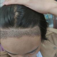 杭州市人民医院发际线种植术后分享