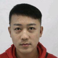 北京丰联丽格头顶加密种植,术后变帅了