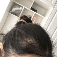 成都艺星发际线种植,头发很自然