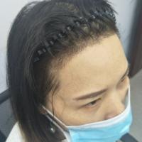 益阳格莱美发际线种植,头发生长得很好