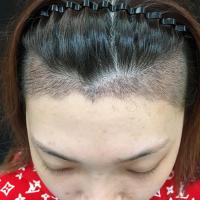 长春海峡发际线种植,头发长得很好哦