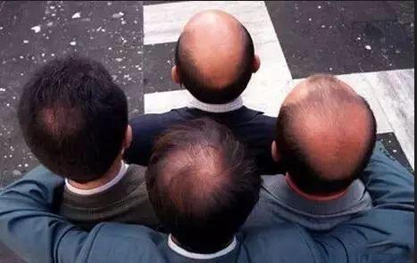 中药偏方,真的能治好脱发吗?