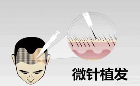 大麦微针植发如何计算毛囊价格的?