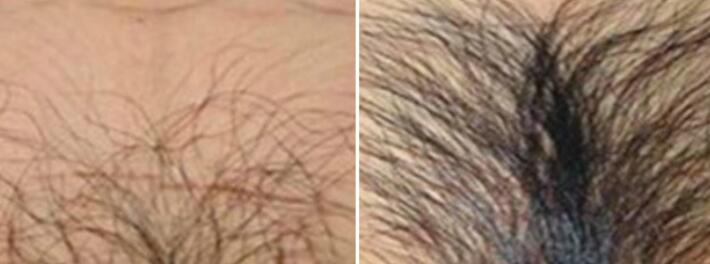 私密毛发种植