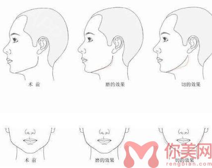 下颌角整形前后对比