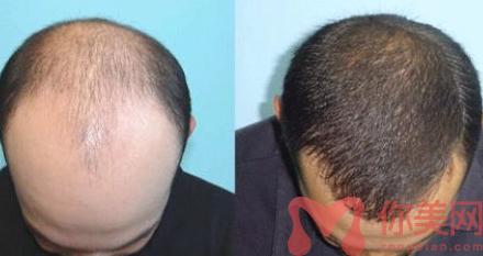 无痕植发前后对比图