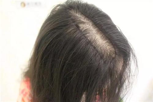 产后脱发的原因有哪些图片