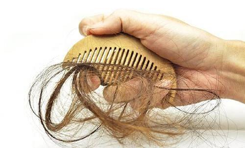 可以自愈的脱发类型有哪些