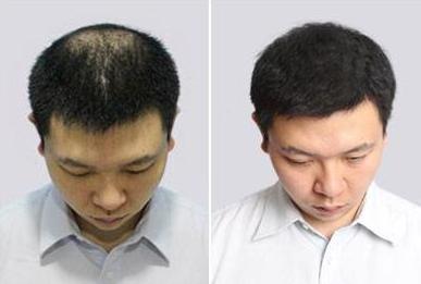 长春毛发移植价格是多少