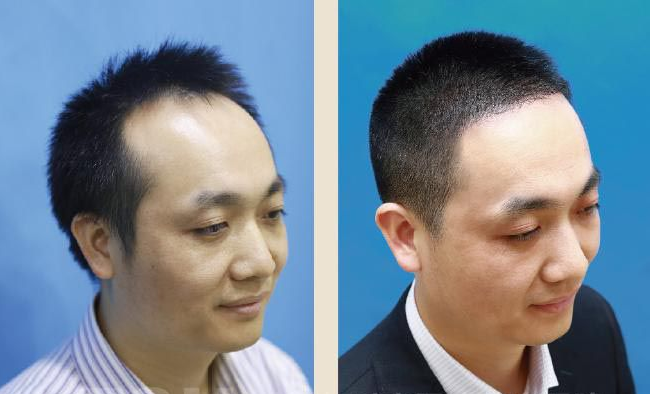 头发移植术后要注意哪些问题呢