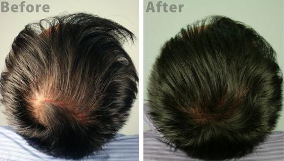 毛发移植手术后要注意些什么