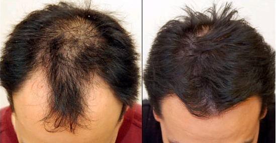 植发的费用有多高,为什么有人会望而却步呢