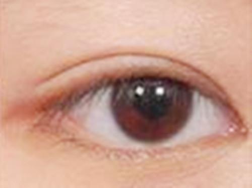 双眼皮手术后的我变自信了