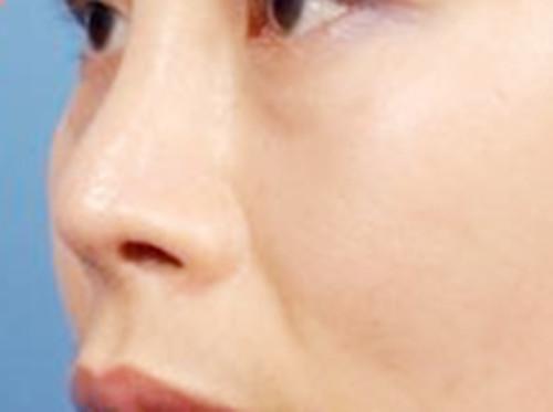 做隆鼻手术,选择长沙素研医疗美容医院一定不会错