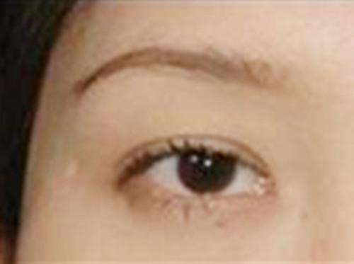 做完双眼皮手术后的我变自信了