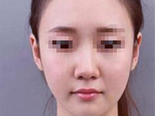 上海华美整形美容医院做鼻综合术效果真棒