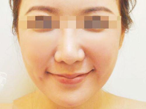 在重庆天妃整形美容医院做自体脂肪填充术效果特别棒!