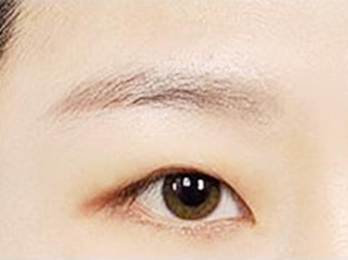 在广州艺星整形美容医院做双眼皮手术效果怎么样?