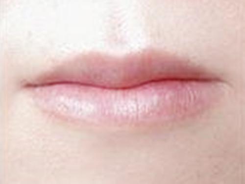 在深圳港美整形美容医院做唇部手术体验特别棒