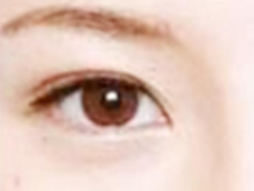 双眼皮手术让我重获自信