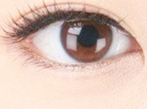 双眼皮的术后效果