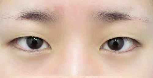 广州美容医院双眼皮手术让我更加漂亮了