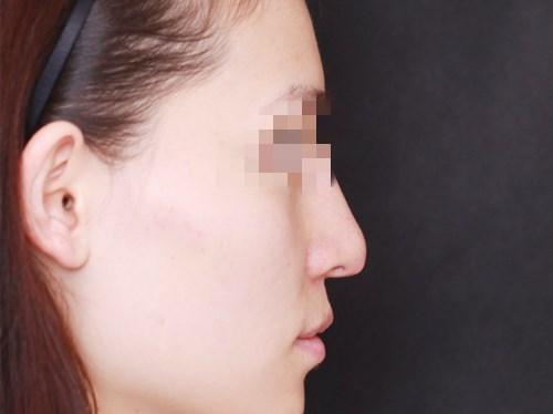 重庆隆鼻手术分享,手术我改变了很多