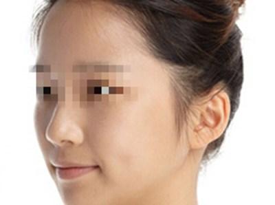在上海做的面部脂肪填充手术效果很好