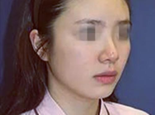 做完鼻综合术的效果怎么样