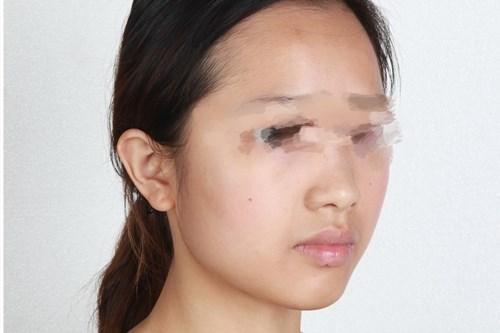 我在成都美容医院做了鼻综合手术