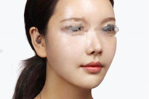 广州整形医院做了面部吸脂给我美丽