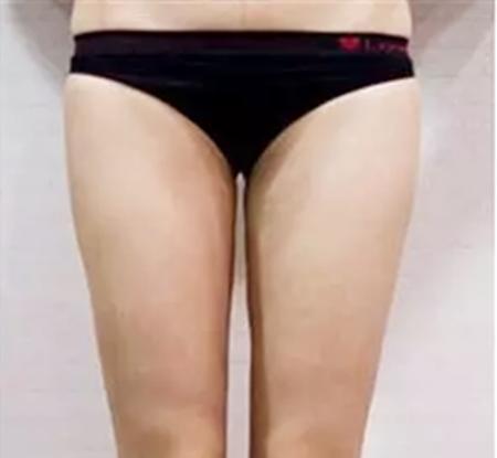 杭州整形医院的大腿吸脂效果真的很强