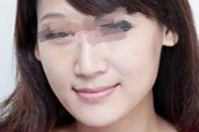 广州美容医院的光子嫩肤让我皮肤秒回18岁
