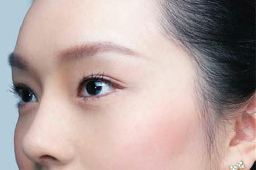 武汉整形医院的全切双眼皮让我的眼睛有神了