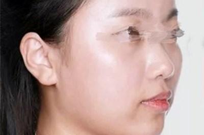 郑州整形医院的假体隆鼻让我精致了许多