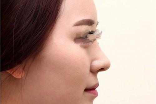 武汉膨体隆鼻手术效果超赞