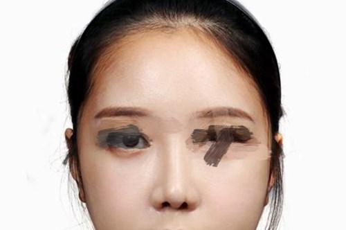 广州整形医院鼻综合整形效果分享